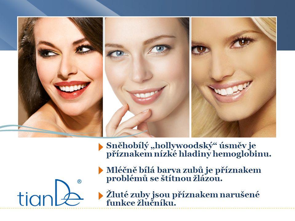 """Sněhobílý """"hollywoodský"""" úsměv je příznakem nízké hladiny hemoglobinu. Mléčně bílá barva zubů je příznakem problémů se štítnou žlázou. Žluté zuby jsou"""