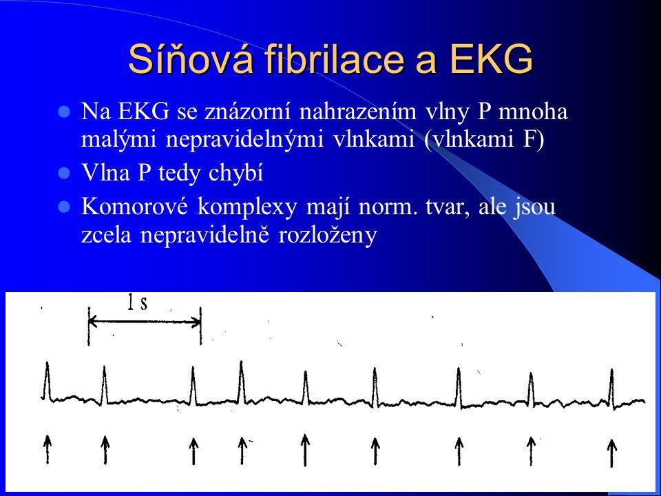 Síňová fibrilace a EKG Na EKG se znázorní nahrazením vlny P mnoha malými nepravidelnými vlnkami (vlnkami F) Vlna P tedy chybí Komorové komplexy mají n