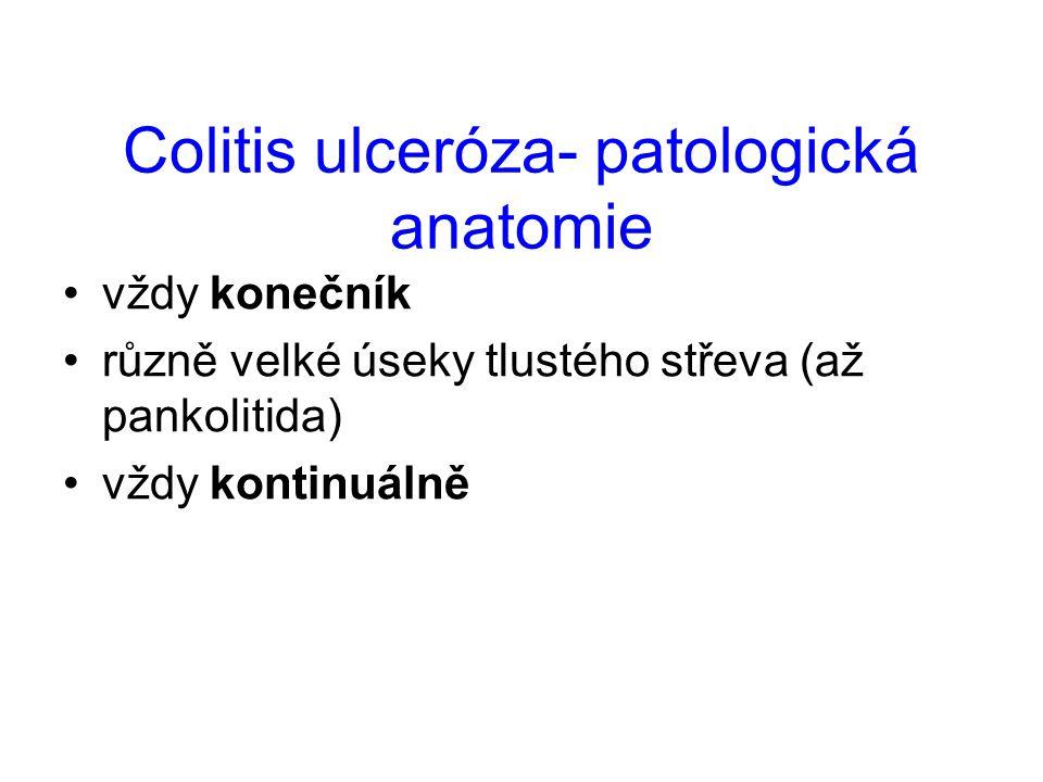 Colitis ulceróza - etiologie mnoho hypotéz autoimunní onemocnění (protilátky proti strukturám kolonocytů) ANCA protilátky genetické vlivy