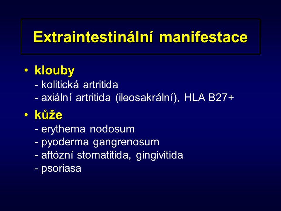 Extraintestinální manifestace kloubyklouby - kolitická artritida - axiální artritida (ileosakrální), HLA B27+ kůžekůže - erythema nodosum - pyoderma g