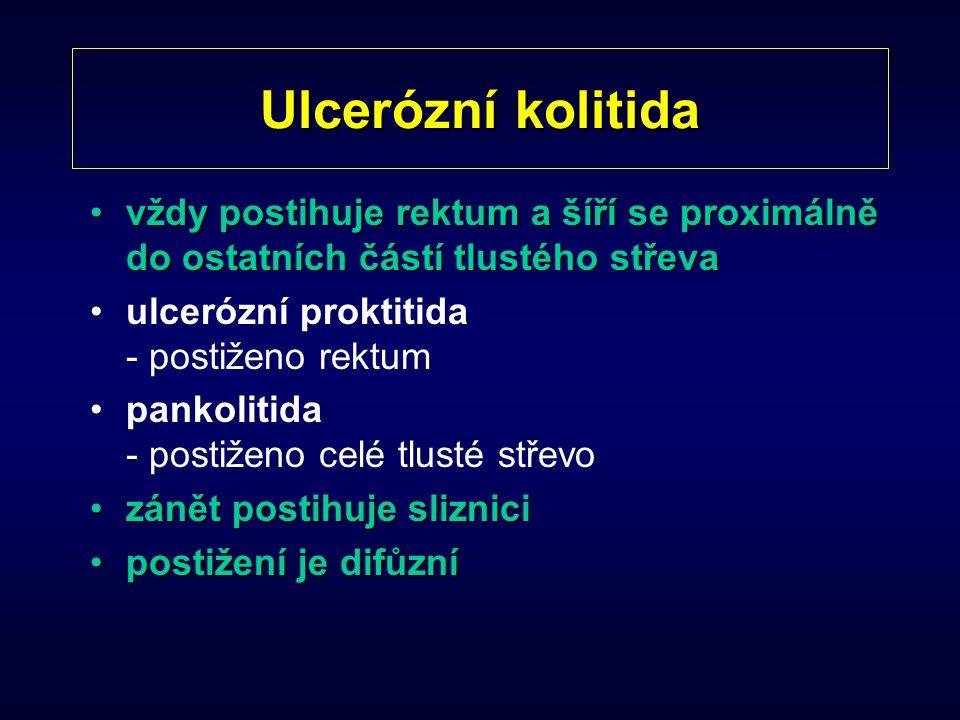 Ulcerózní kolitida vždy postihuje rektum a šíří se proximálně do ostatních částí tlustého střevavždy postihuje rektum a šíří se proximálně do ostatníc