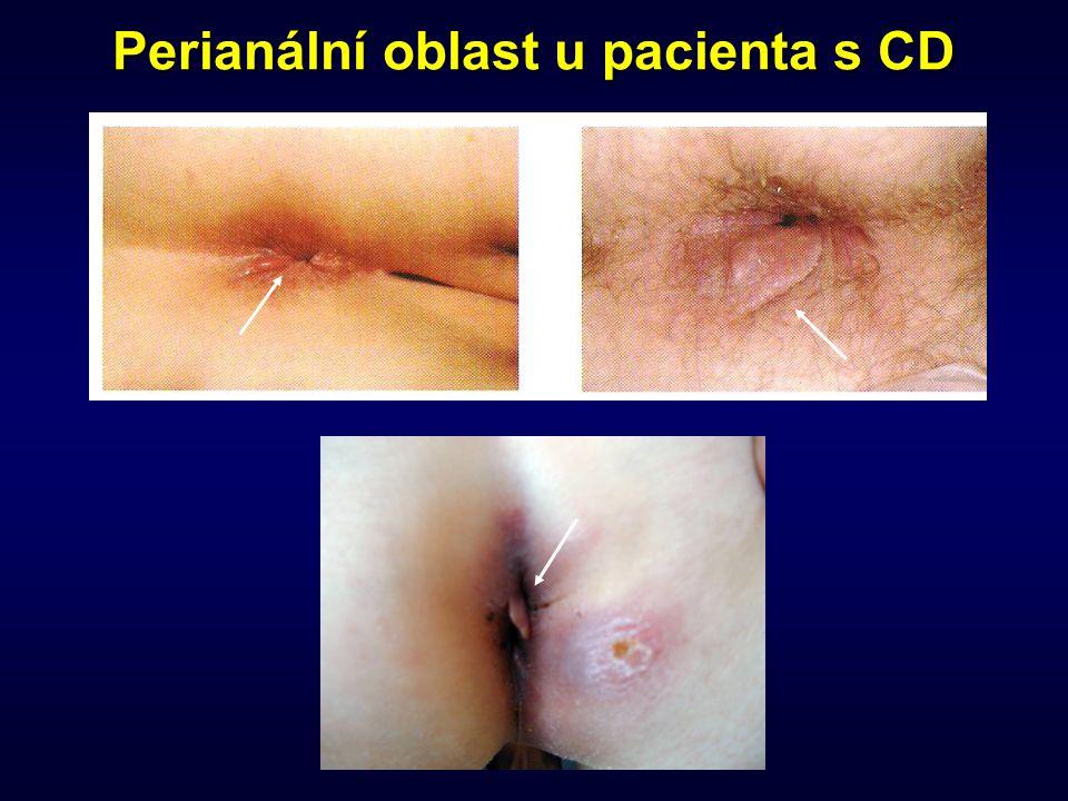 Perianální oblast u pacienta s CD