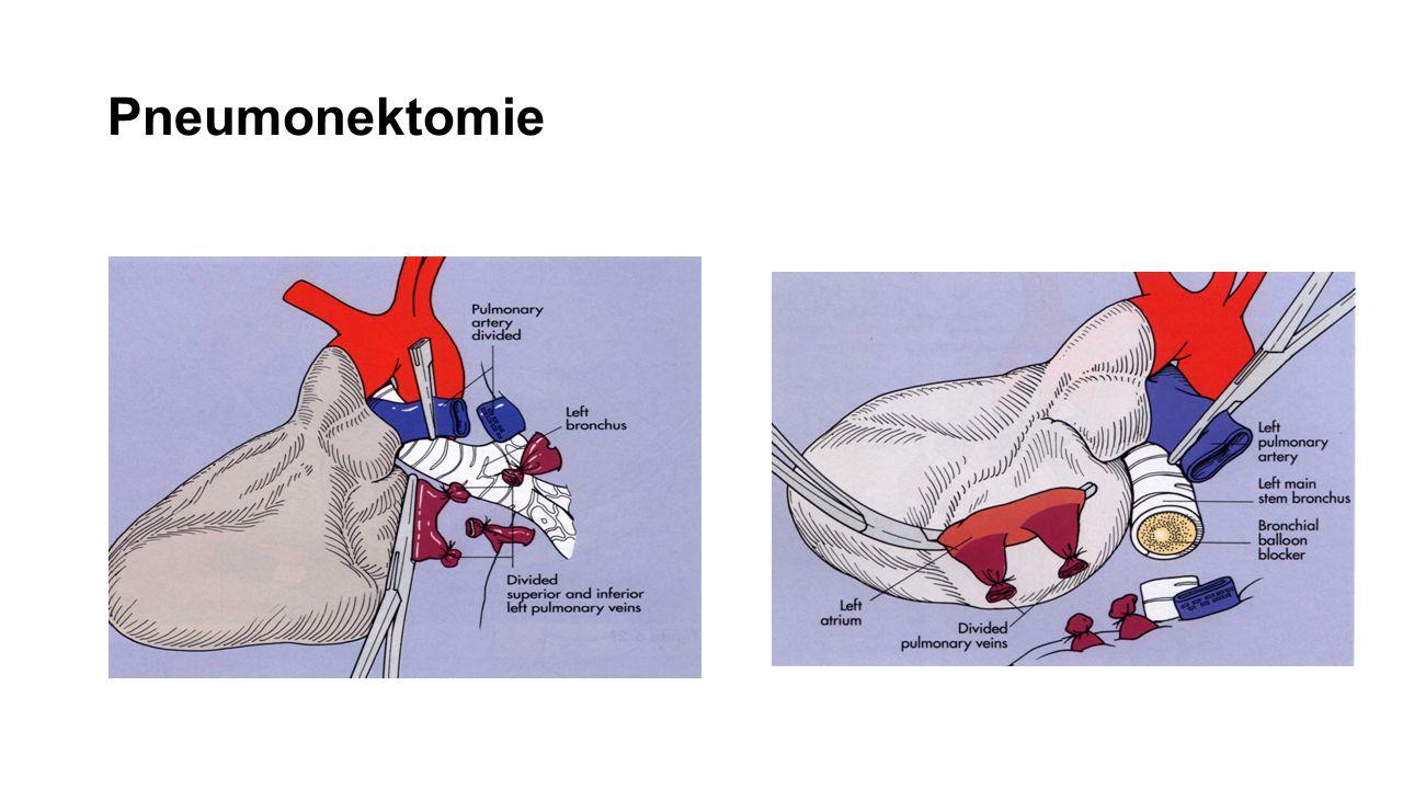 Pneumonektomie
