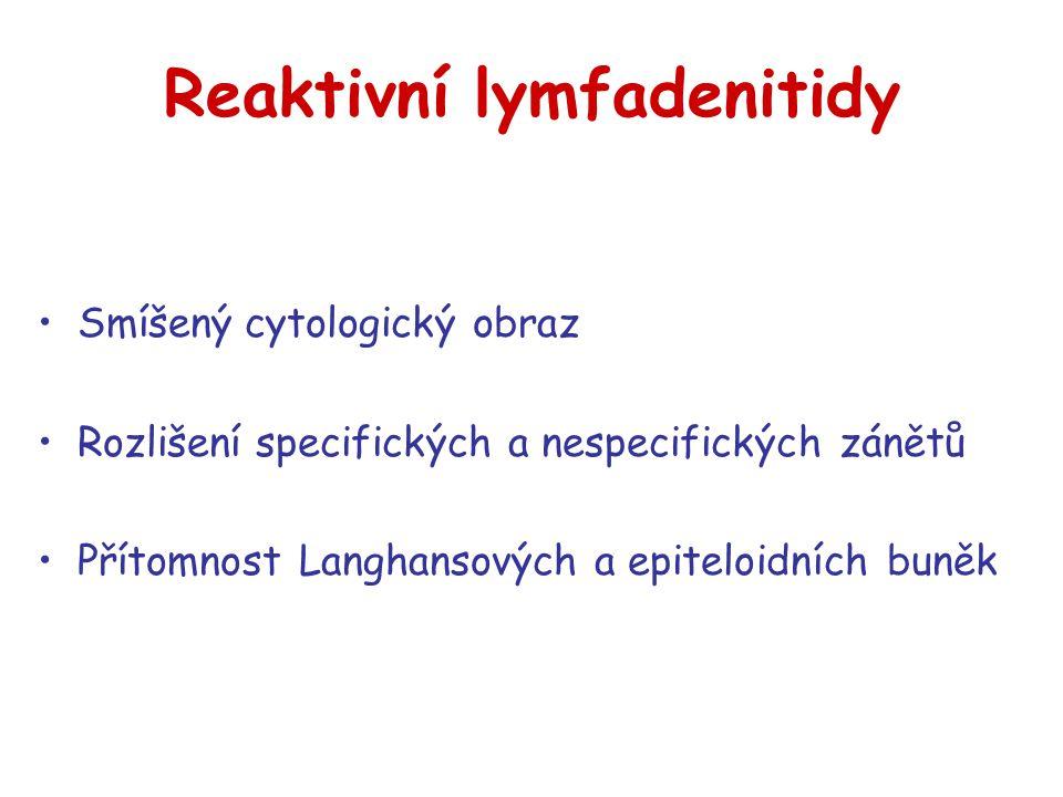 Reaktivní lymfadenitidy Smíšený cytologický obraz Rozlišení specifických a nespecifických zánětů Přítomnost Langhansových a epiteloidních buněk