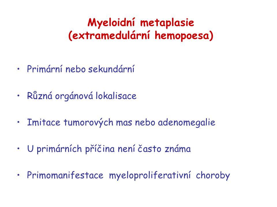 Myeloidní metaplasie (extramedulární hemopoesa) Primární nebo sekundární Různá orgánová lokalisace Imitace tumorových mas nebo adenomegalie U primární