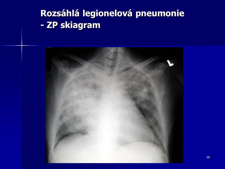 16 Rozsáhlá legionelová pneumonie - ZP skiagram