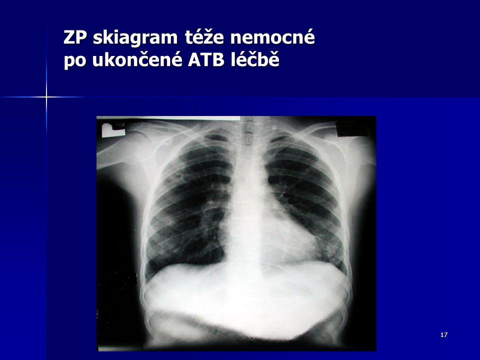 17 ZP skiagram téže nemocné po ukončené ATB léčbě