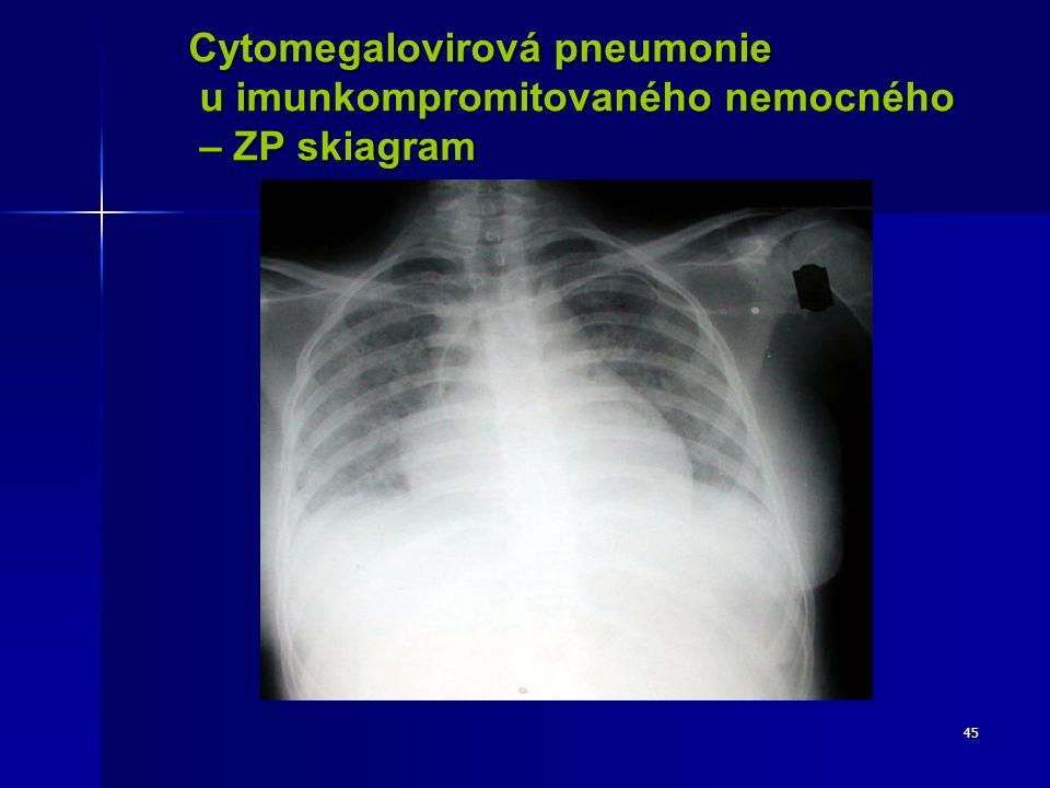 45 Cytomegalovirová pneumonie u imunkompromitovaného nemocného u imunkompromitovaného nemocného – ZP skiagram – ZP skiagram