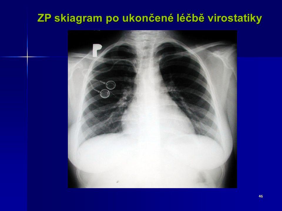 46 ZP skiagram po ukončené léčbě virostatiky