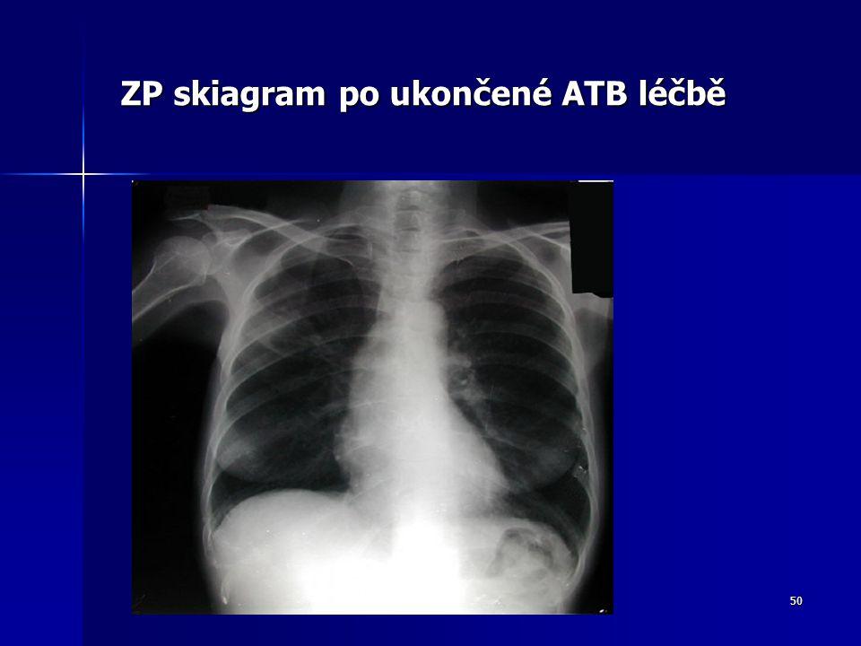 50 ZP skiagram po ukončené ATB léčbě