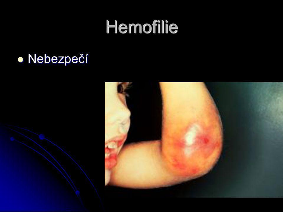 Hemofilie Nebezpečí Nebezpečí