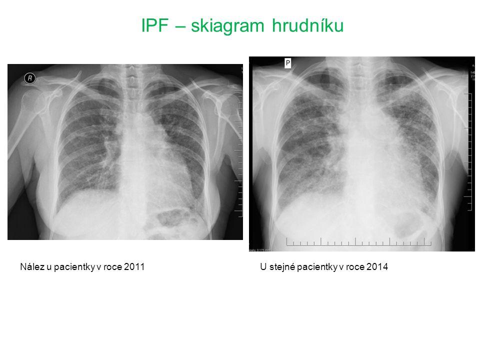 IPF – skiagram hrudníku Nález u pacientky v roce 2011U stejné pacientky v roce 2014