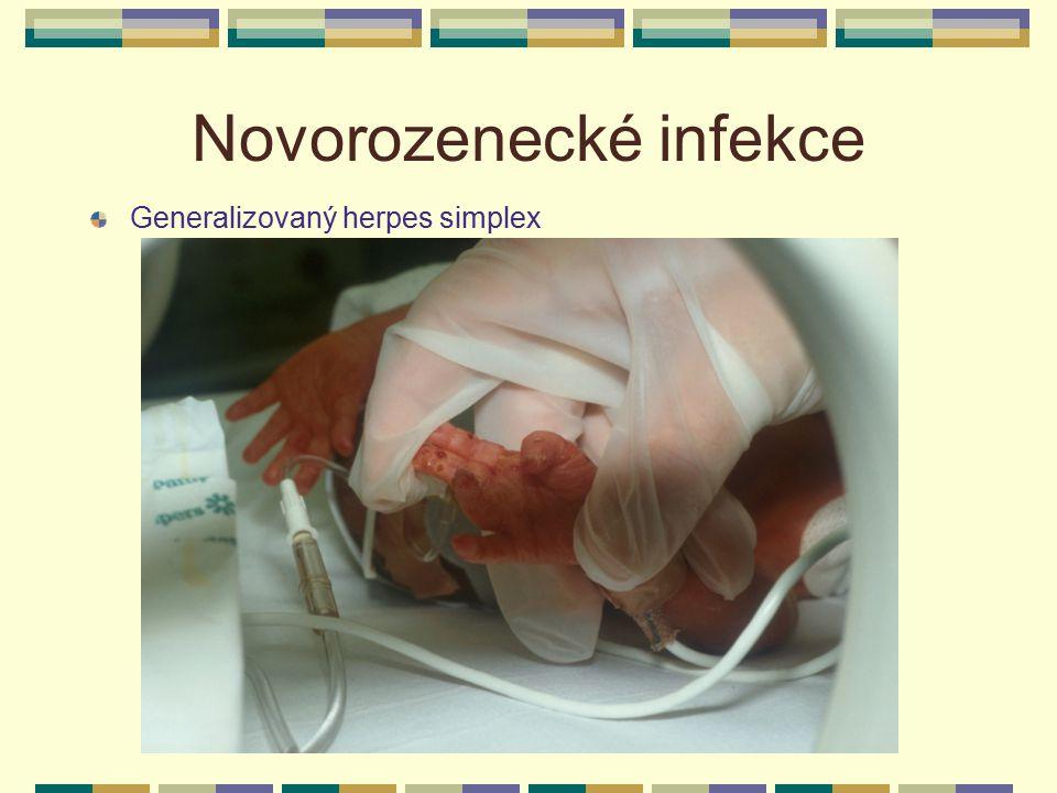 Novorozenecké infekce Generalizovaný herpes simplex