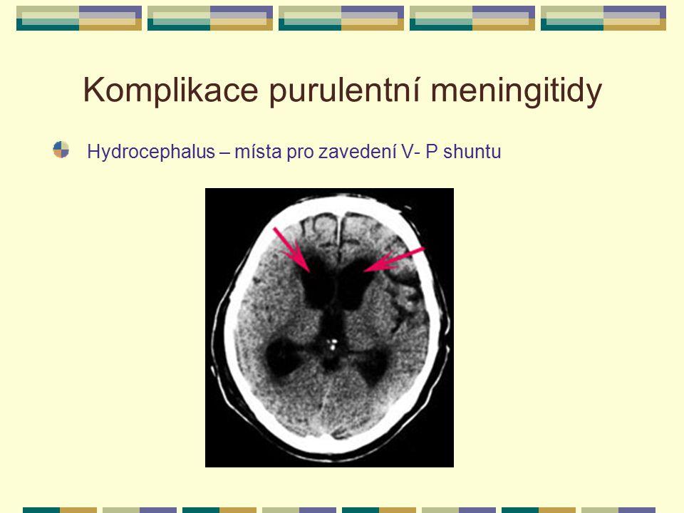 Komplikace purulentní meningitidy Hydrocephalus – místa pro zavedení V- P shuntu