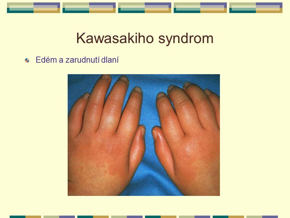 Kawasakiho syndrom Edém a zarudnutí dlaní