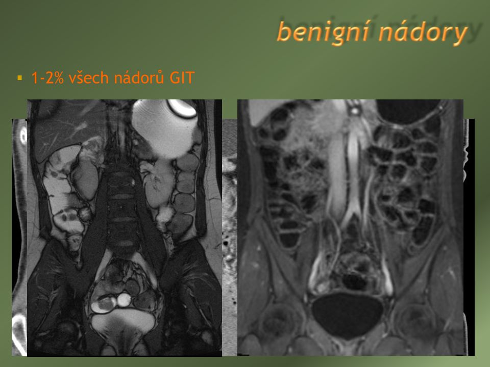 1-2% všech nádorů GIT  leiomyom (22-43% benigních tumorů, více v jejunu)  adenom (14-20%)  lipom (8-20%)  hamartom  polypózní syndromy - prekan