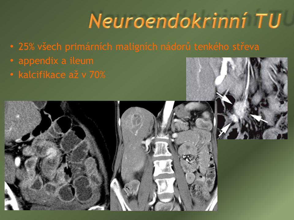 25% všech primárních maligních nádorů tenkého střeva appendix a ileum kalcifikace až v 70%