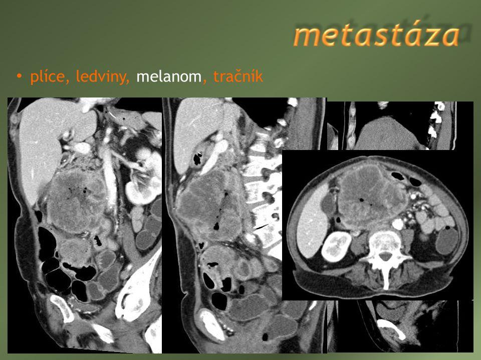 plíce, ledviny, melanom, tračník