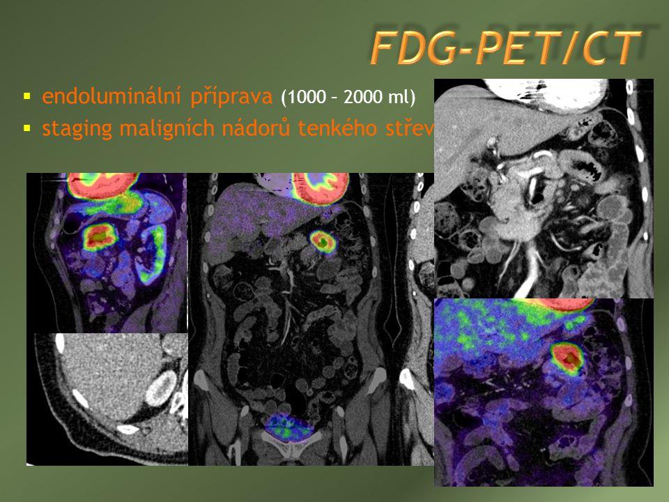  endoluminální příprava (1000 – 2000 ml)  staging maligních nádorů tenkého střeva (adenokarcinom)