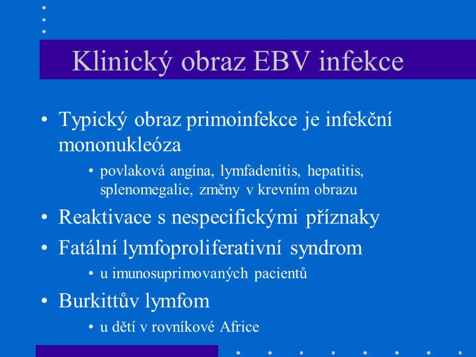 Klinický obraz EBV infekce Typický obraz primoinfekce je infekční mononukleóza povlaková angína, lymfadenitis, hepatitis, splenomegalie, změny v krevn