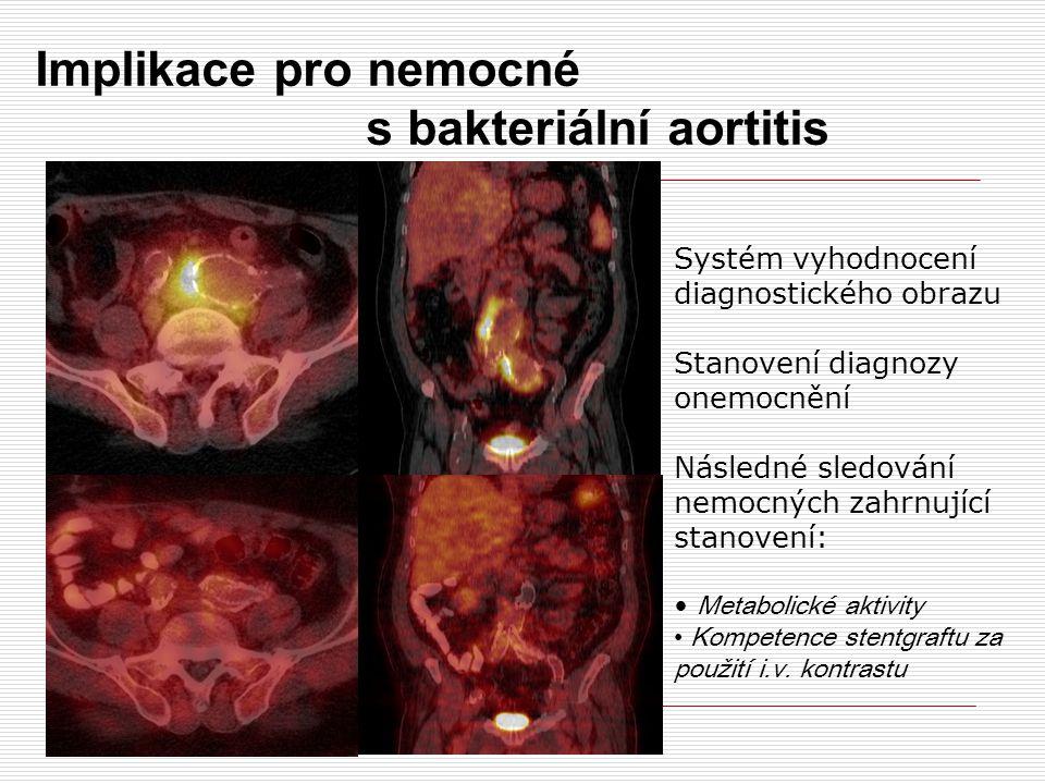 Implikace pro nemocné s bakteriální aortitis Systém vyhodnocení diagnostického obrazu Stanovení diagnozy onemocnění Následné sledování nemocných zahrnující stanovení: Metabolické aktivity Kompetence stentgraftu za použití i.v.