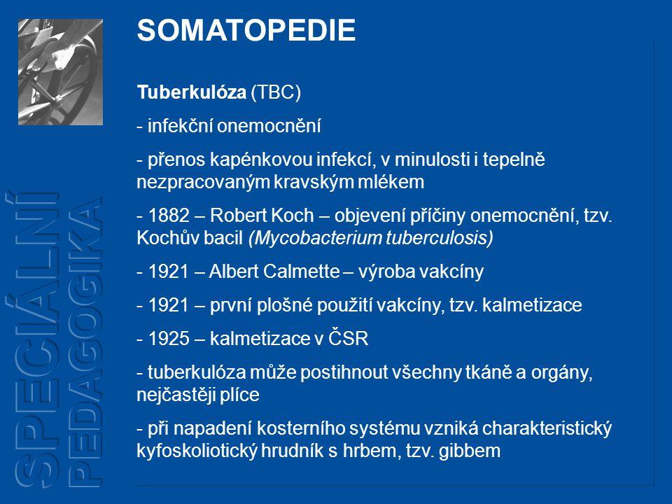 Tuberkulóza (TBC) - infekční onemocnění - přenos kapénkovou infekcí, v minulosti i tepelně nezpracovaným kravským mlékem - 1882 – Robert Koch – objevení příčiny onemocnění, tzv.