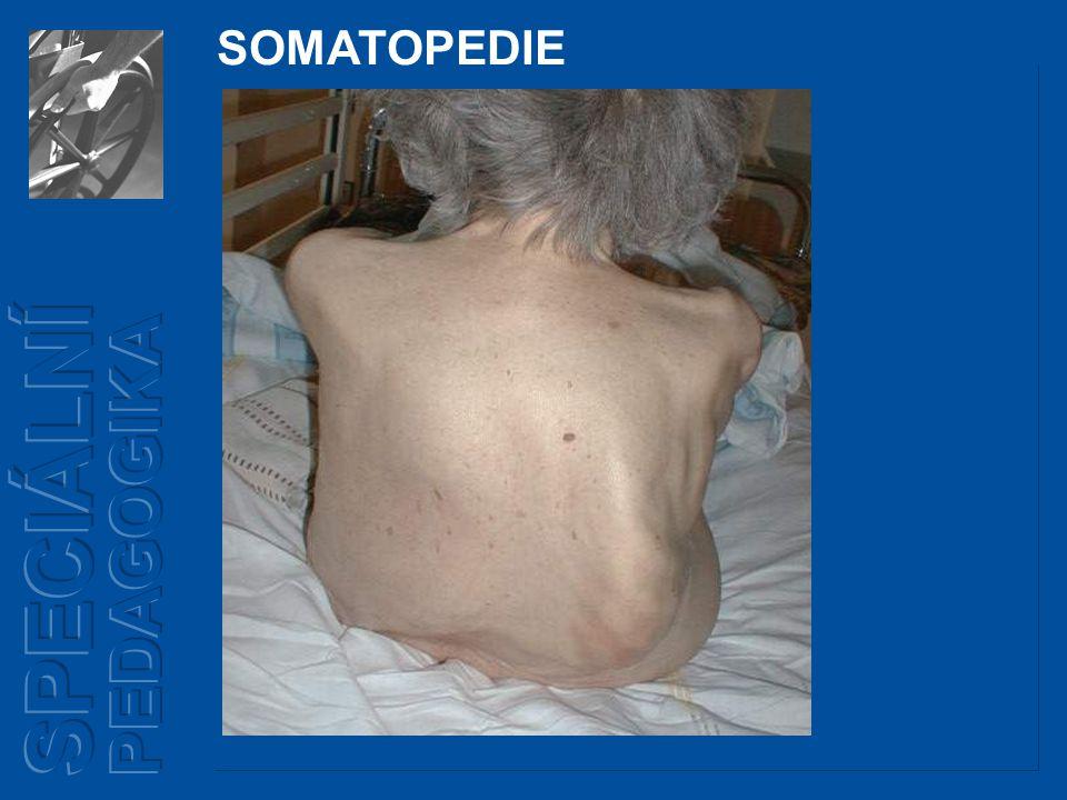 Dětská obrna - poliomyelitis anterior acuta, neboli Heine – Medinovo onemocnění - infekční onemocnění způsobující obrny SOMATOPEDIE