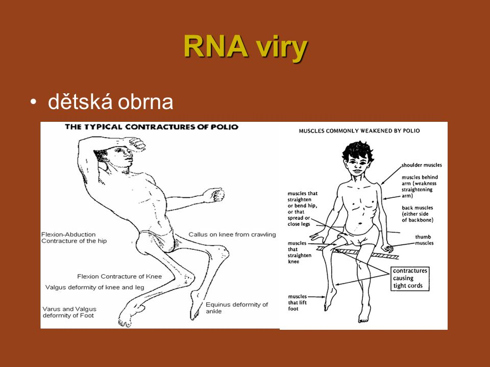 RNA viry rýmarýma –příznaky: zvýšená teplota, zduření nosní sliznice zánět středního ucha → zánět středního ucha kapénková infekce, infikované prsty –přenos: kapénková infekce, infikované prsty –akutní a chronická –léčba: symptomatická .