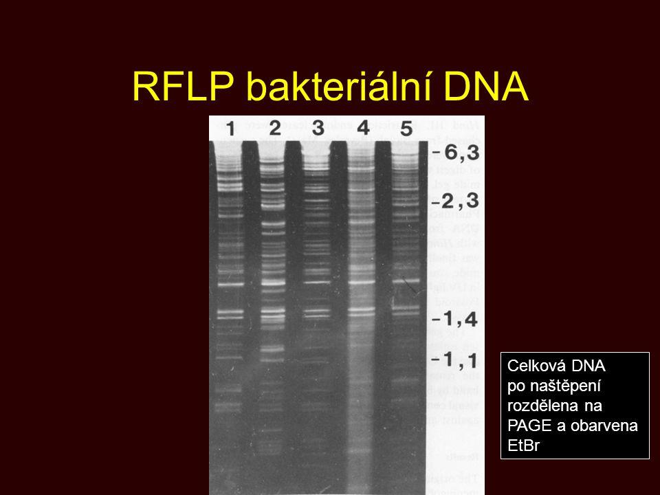 RFLP bakteriální DNA Celková DNA po naštěpení rozdělena na PAGE a obarvena EtBr