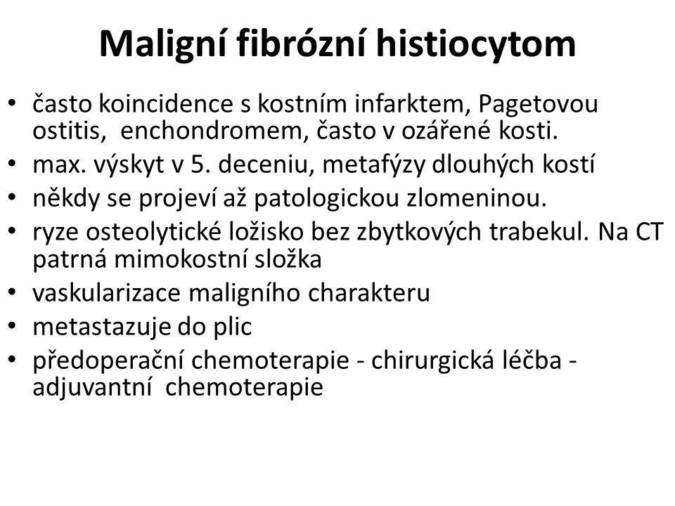 Maligní fibrózní histiocytom často koincidence s kostním infarktem, Pagetovou ostitis, enchondromem, často v ozářené kosti. max. výskyt v 5. deceniu,