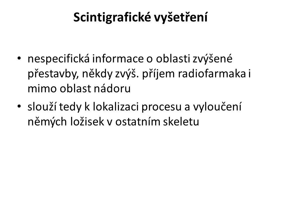 Scintigrafické vyšetření nespecifická informace o oblasti zvýšené přestavby, někdy zvýš. příjem radiofarmaka i mimo oblast nádoru slouží tedy k lokali