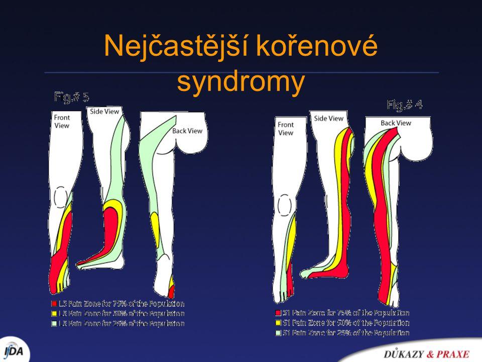 Nejčastější kořenové syndromy