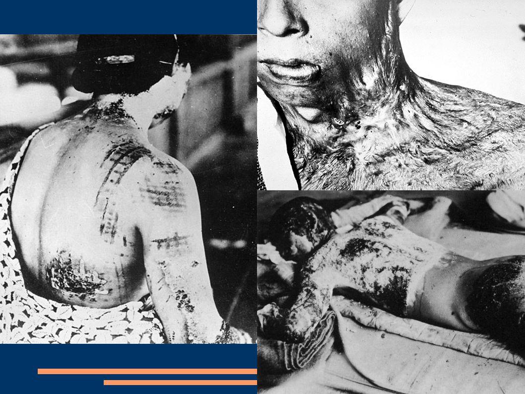 Diskuze o použití bomby Role bombardování v japonské kapitulaci a jeho morální odůvodnění jsou předmětem vědecké i populární diskuse již desítky let.
