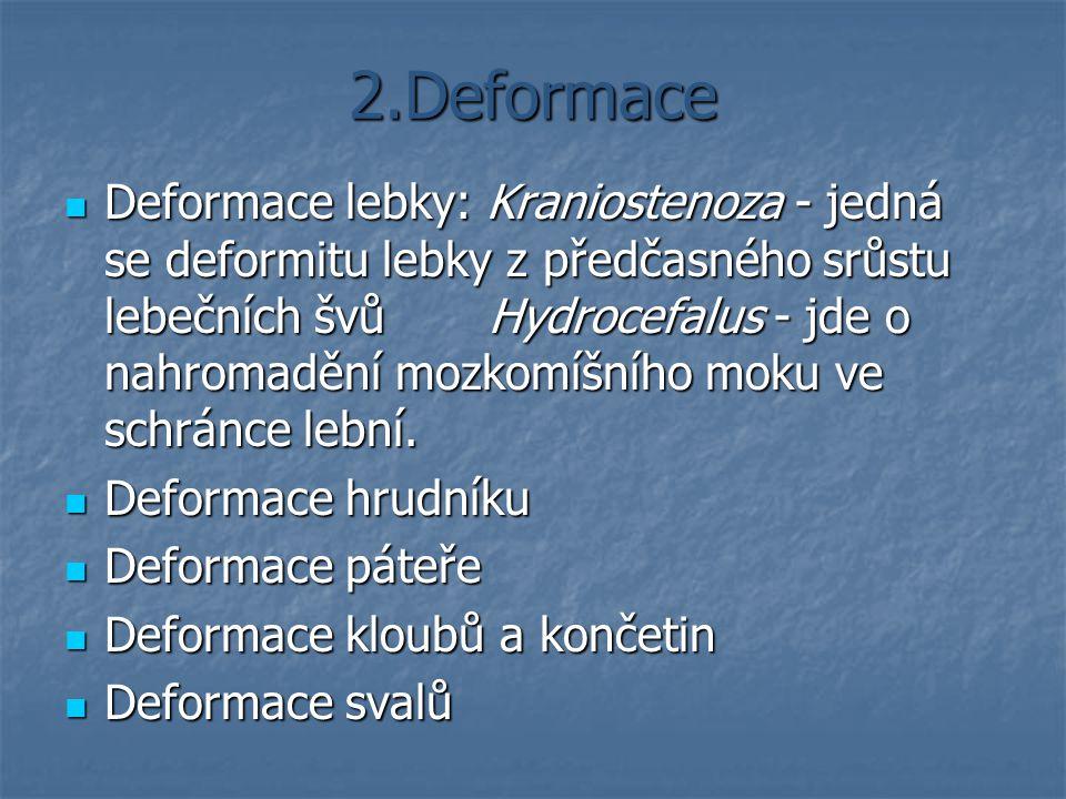 2.Deformace Deformace lebky: Kraniostenoza - jedná se deformitu lebky z předčasného srůstu lebečních švů Hydrocefalus - jde o nahromadění mozkomíšního