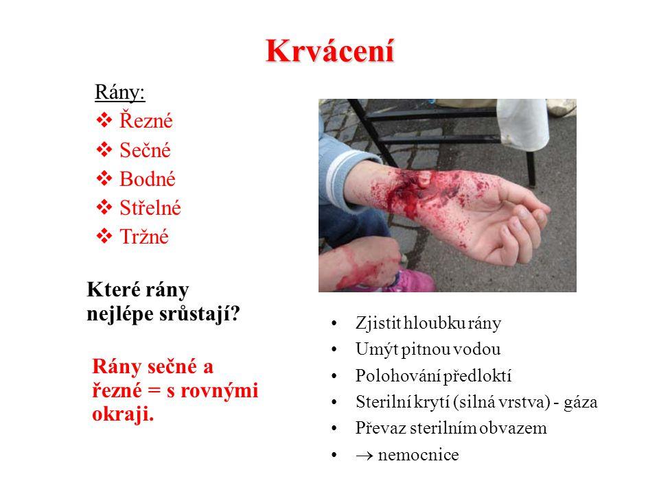 Krvácení Vlásečnicové Žilní Tepenné Které z nich je nejvíc život ohrožující? Zjistit hloubku rány Povrchové krvácení  umýt pitnou vodou, vydesinfikov