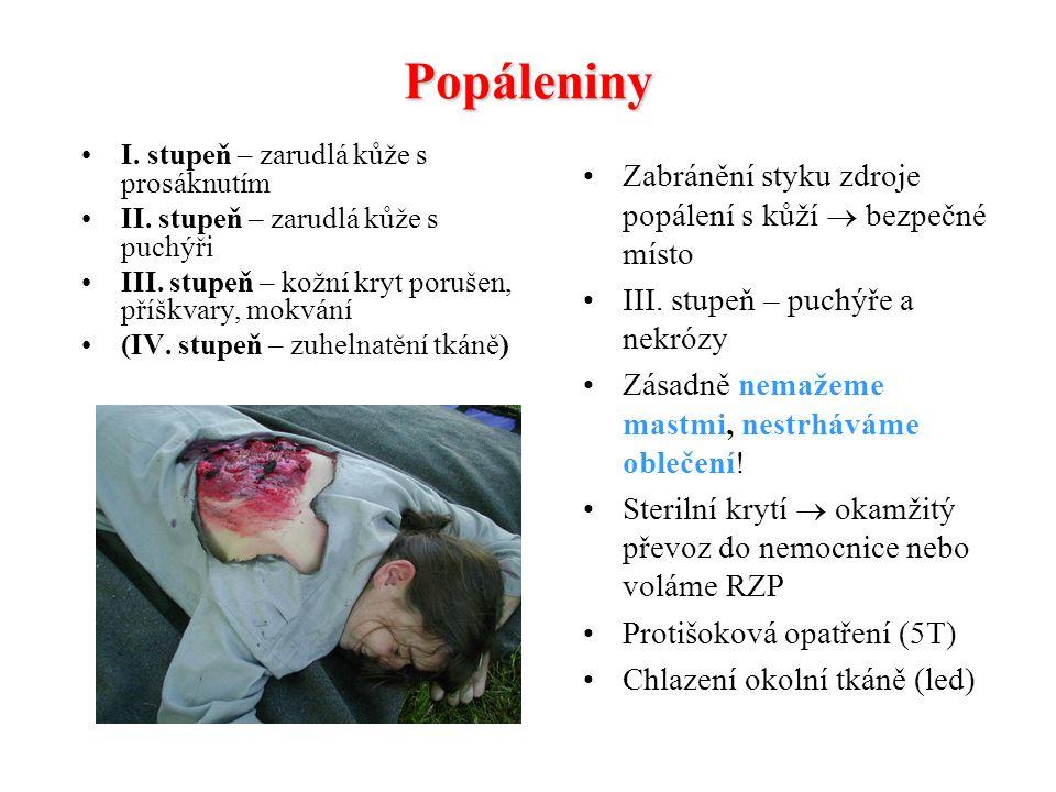 Úpal a úžeh Důležitá prevence! V parném dni hlavně malé děti dostatečně pít, ve stínu, nepříliš fyzicky náročné akce, čepice s kšiltem na hlavě nebo m