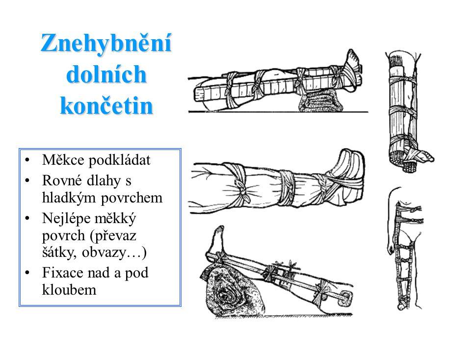 Dlahy Kramerova dlaha Improvizované – hůlky, rovné klacky, prkýnka… Moderní Vakuové fixační