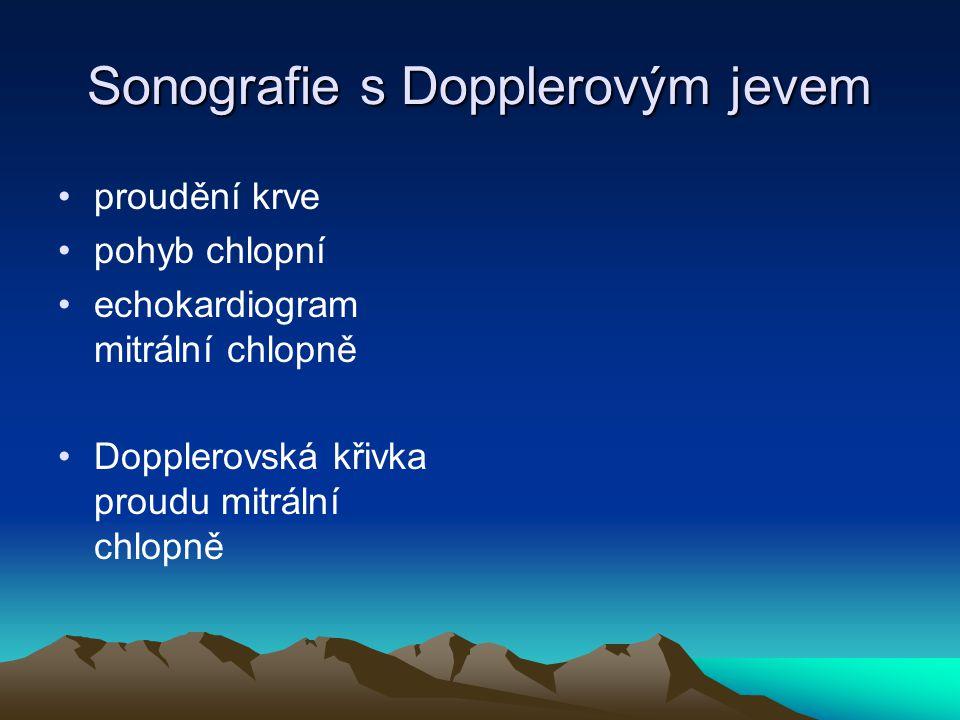 Sonografie s Dopplerovým jevem proudění krve pohyb chlopní echokardiogram mitrální chlopně Dopplerovská křivka proudu mitrální chlopně