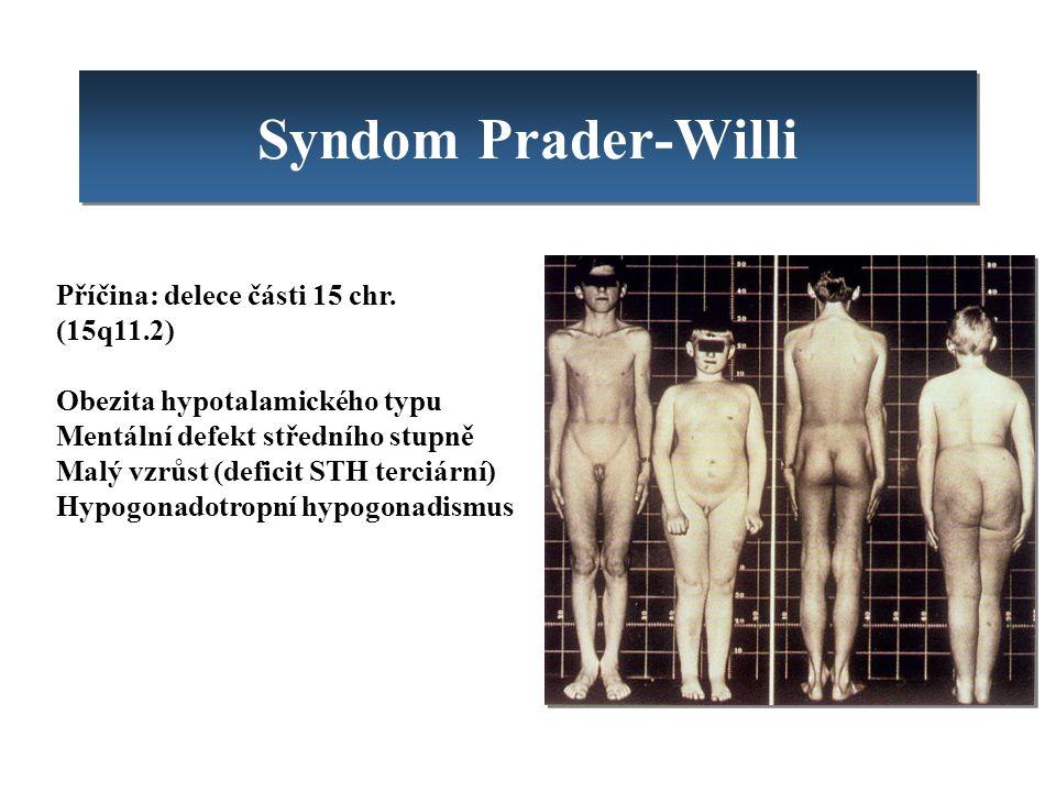 Syndom Prader-Willi Příčina: delece části 15 chr. (15q11.2) Obezita hypotalamického typu Mentální defekt středního stupně Malý vzrůst (deficit STH ter