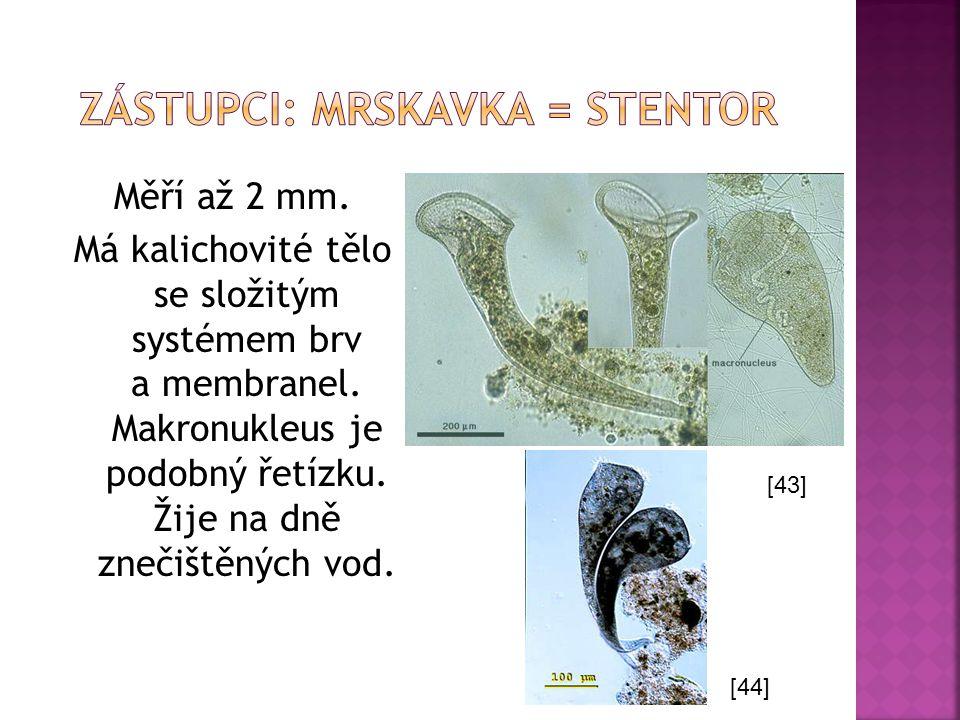 Měří až 2 mm. Má kalichovité tělo se složitým systémem brv a membranel. Makronukleus je podobný řetízku. Žije na dně znečištěných vod. [43] [44]