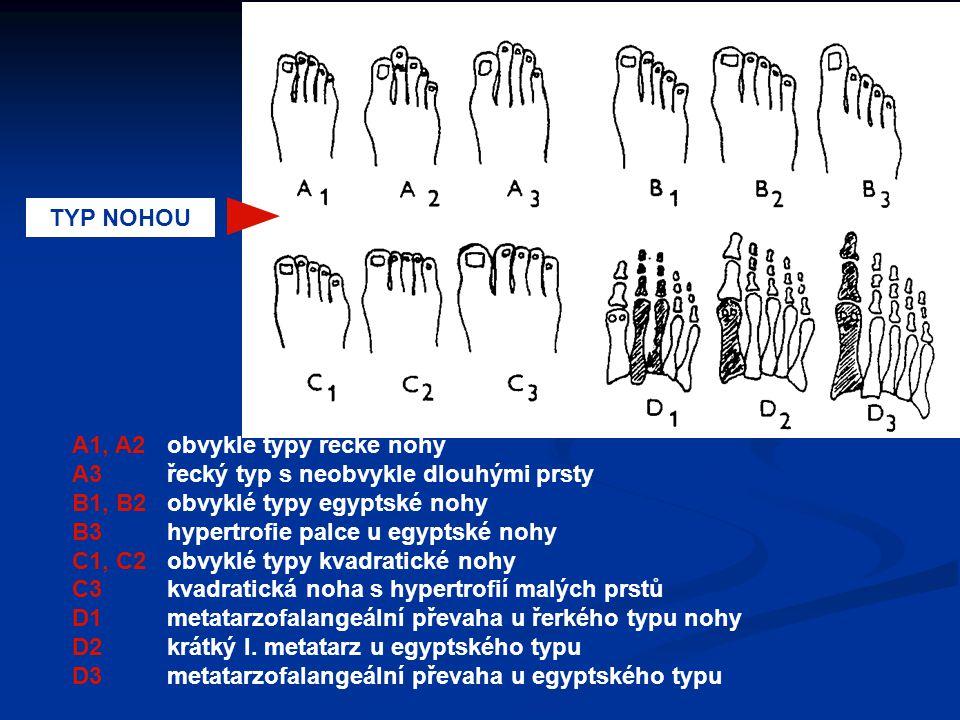 TYP NOHOU A1, A2obvyklé typy řecké nohy A3řecký typ s neobvykle dlouhými prsty B1, B2obvyklé typy egyptské nohy B3hypertrofie palce u egyptské nohy C1