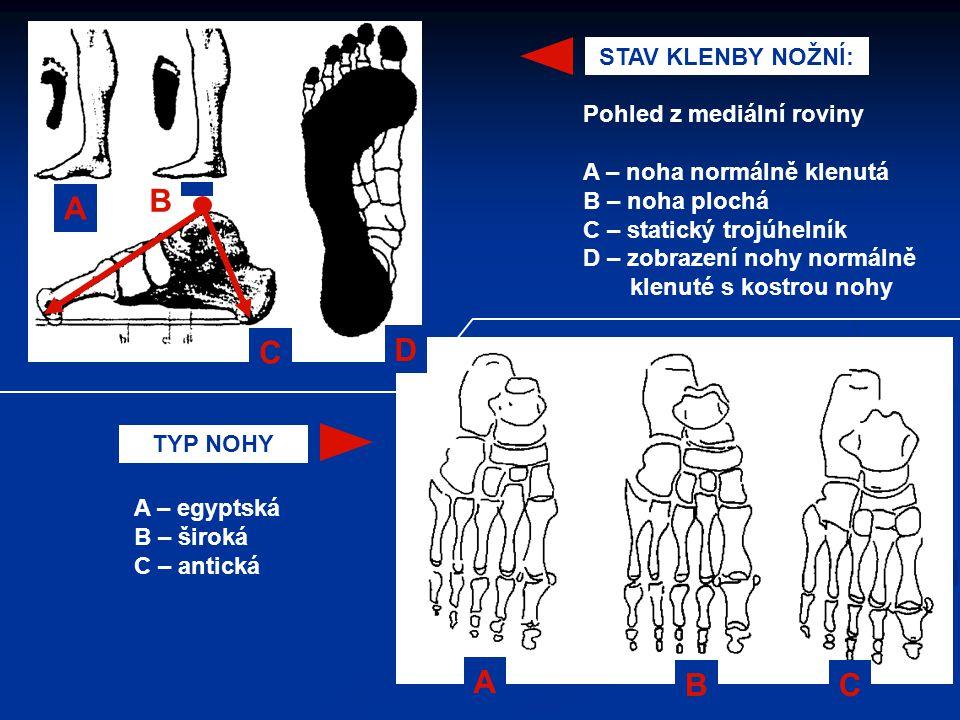 A BC STAV KLENBY NOŽNÍ: Pohled z mediální roviny A – noha normálně klenutá B – noha plochá C – statický trojúhelník D – zobrazení nohy normálně klenut