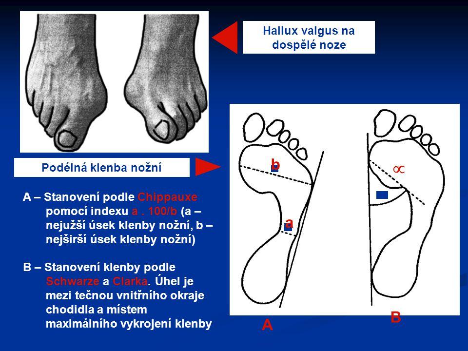 Hallux valgus na dospělé noze Podélná klenba nožní A – Stanovení podle Chippauxe pomocí indexu a. 100/b (a – nejužší úsek klenby nožní, b – nejširší ú