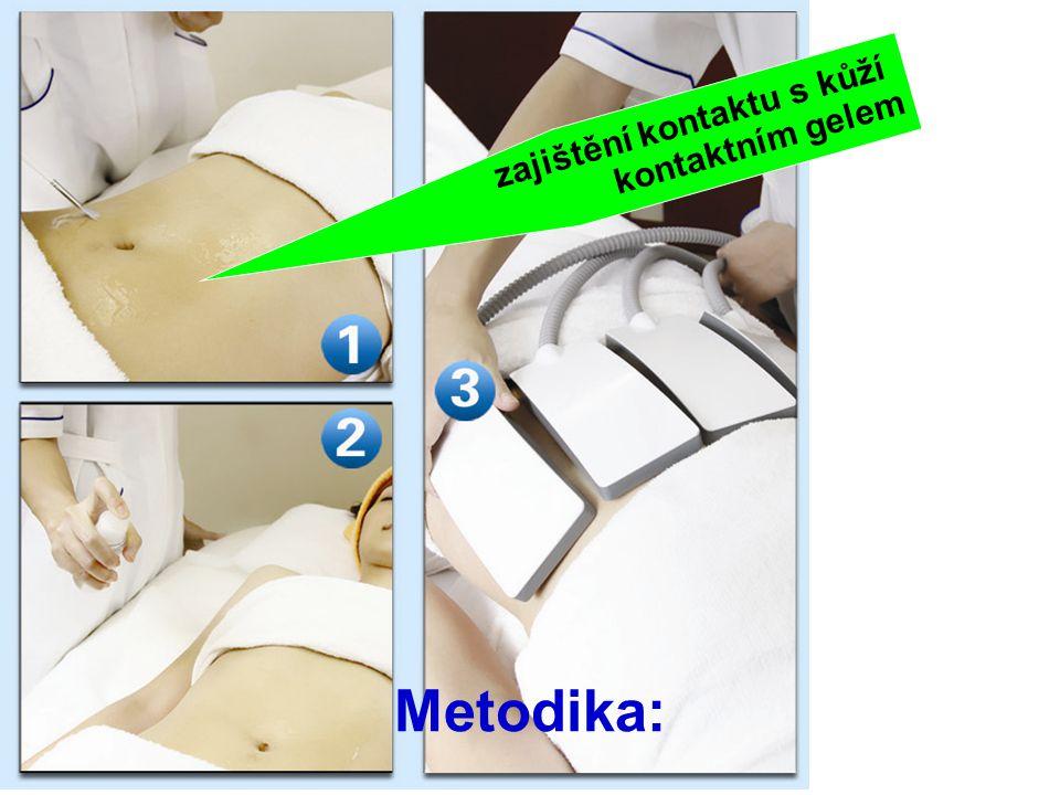 zajištění kontaktu s kůží kontaktním gelem Metodika: