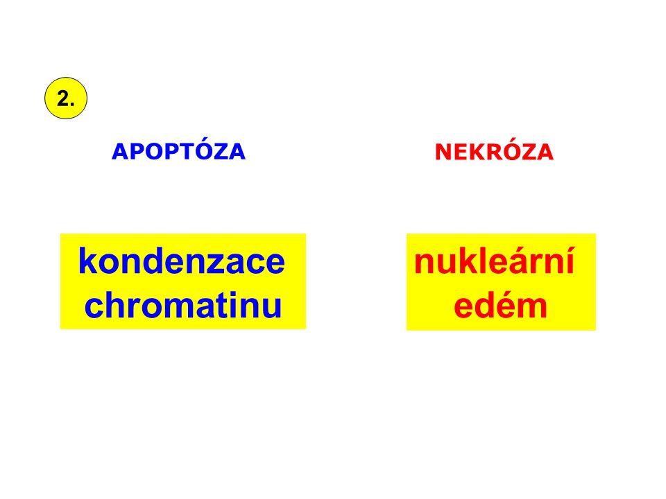 kondenzace chromatinu nukleární edém APOPTÓZA NEKRÓZA 2.