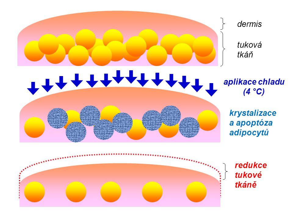 dermis tuková tkáň redukce tukové tkáně aplikace chladu (4 °C) krystalizace a apoptóza adipocytů