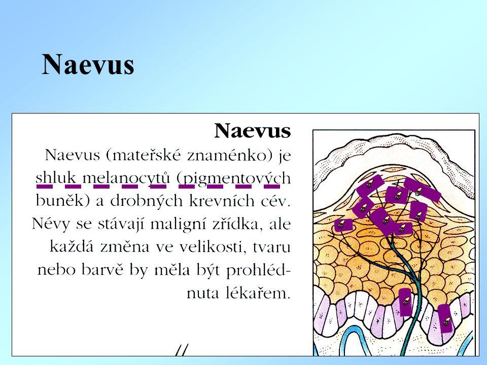 Naevus