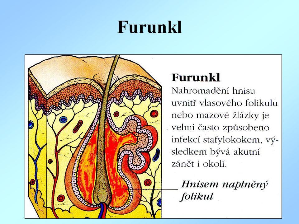 Furunkl