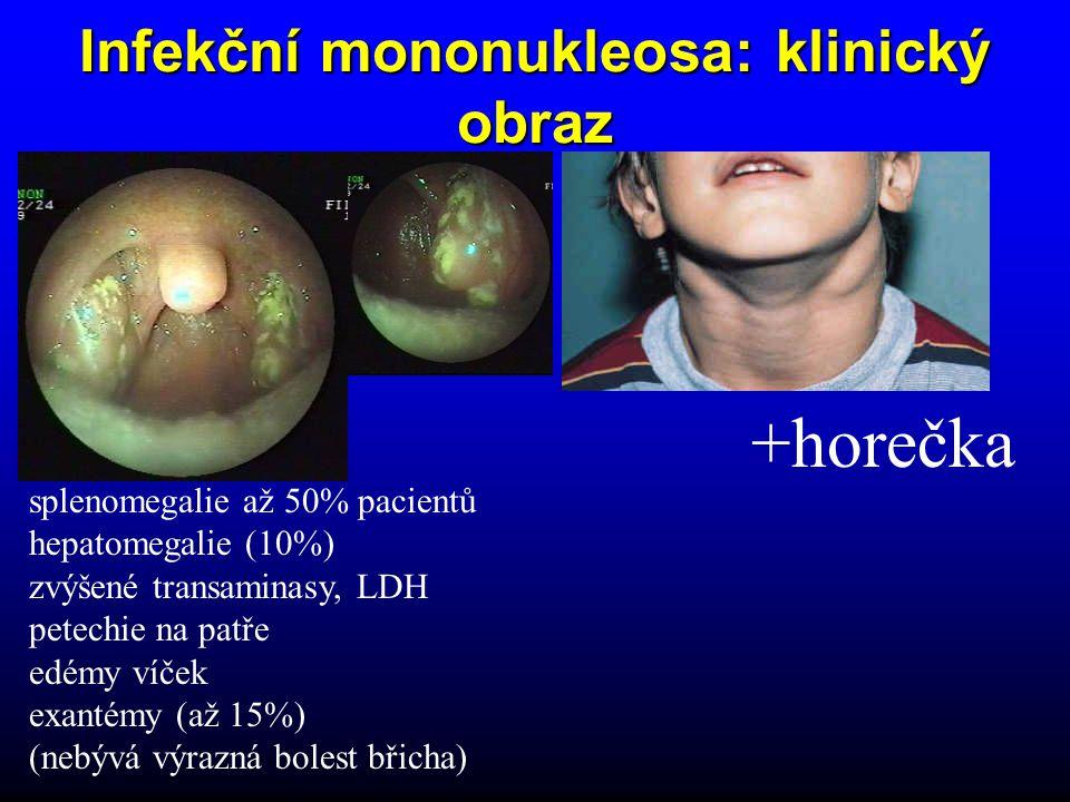 +horečka Infekční mononukleosa: klinický obraz splenomegalie až 50% pacientů hepatomegalie (10%) zvýšené transaminasy, LDH petechie na patře edémy víček exantémy (až 15%) (nebývá výrazná bolest břicha)
