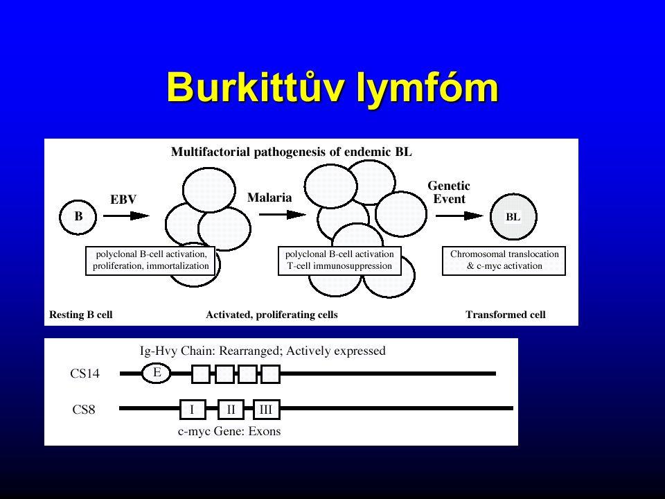 Burkittův lymfóm